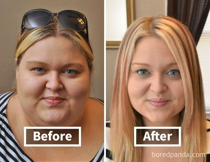 Weight loss from face