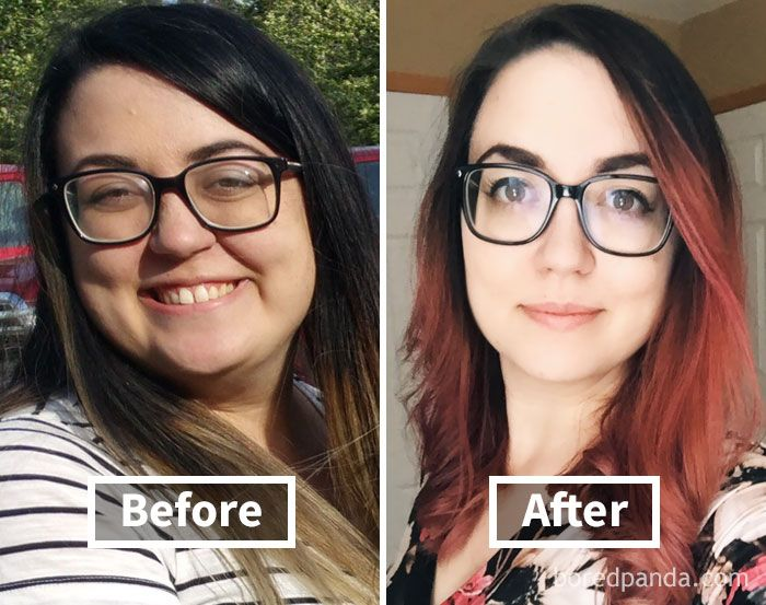 Amazing before after pics reveal how weight loss affects your face ccuart Images